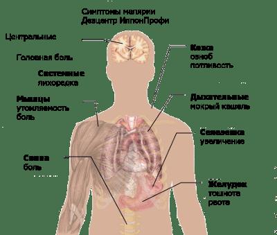 Малярия болезнь симптомы